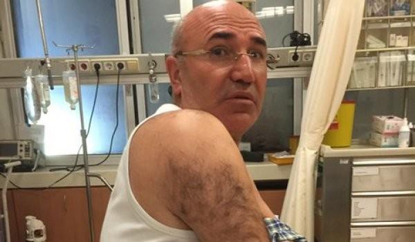 CHP'li vekile polis şiddeti: Hastanelik oldu