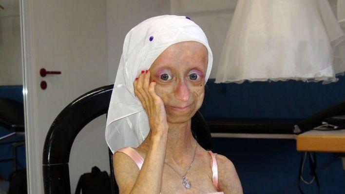 Erken yaşlanma hastası Gamze'nin acı sonu!